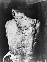 devastating consequences of the atomic bomb in hiroshima and nagasaki On aug 6, 1945, a us plane dropped an atomic bomb on the japanese city of hiroshima three days later, a second bomb hit the city of nagasaki more than 120,000 people were immediately killed.